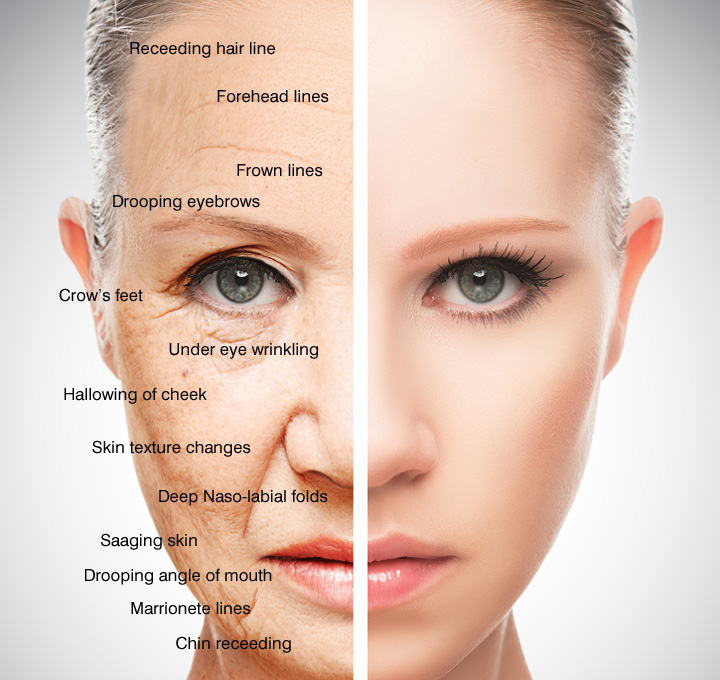 Signs Of Skin Ageing Aevum Clinic In Blackrock Medical Centre Cork